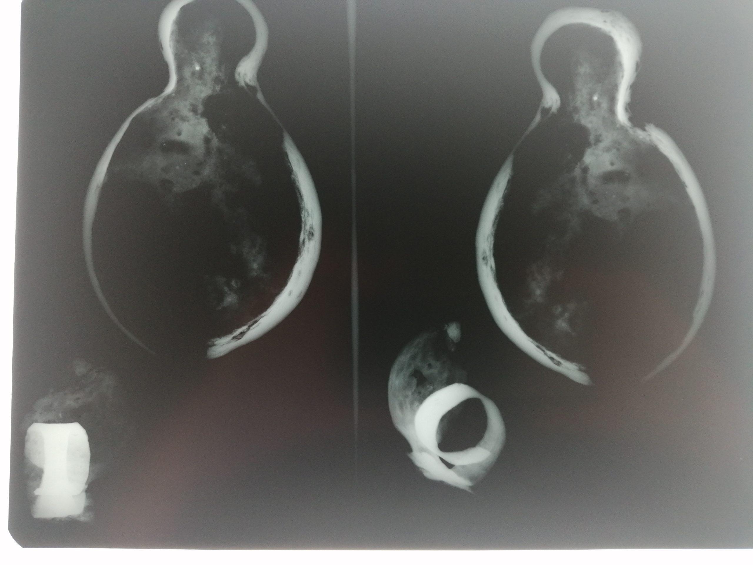 LampB2c / X-ray